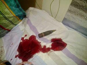 Террористы обстреляли Красногоровку. Осколок прилетел в постель пенсионера